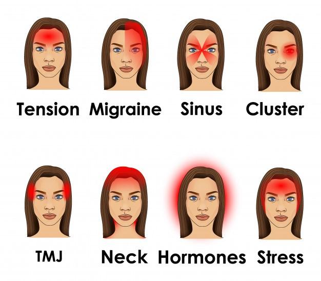 شناسایی سردرد